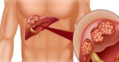 Ung thư gan, nguyên nhân và cách điều trị hợp lý