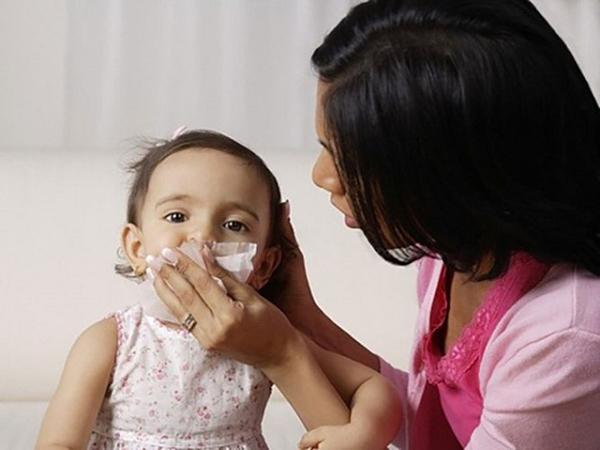 Nguyên nhân chảy máu cam ở trẻ và cách xử trí